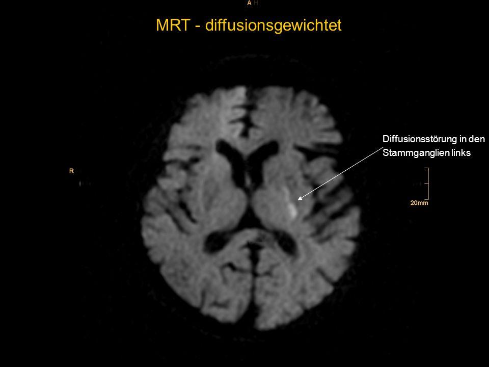 Verlauf Kontrolle der cerebralen Bildgebung mit kleinem Infarkt in den Stammganglien links Die initial ausgeprägte Symptomatik bildete sich weitgehend zurück, zuletzt bestand noch eine leichte Feinmotorikstörung der rechten Hand