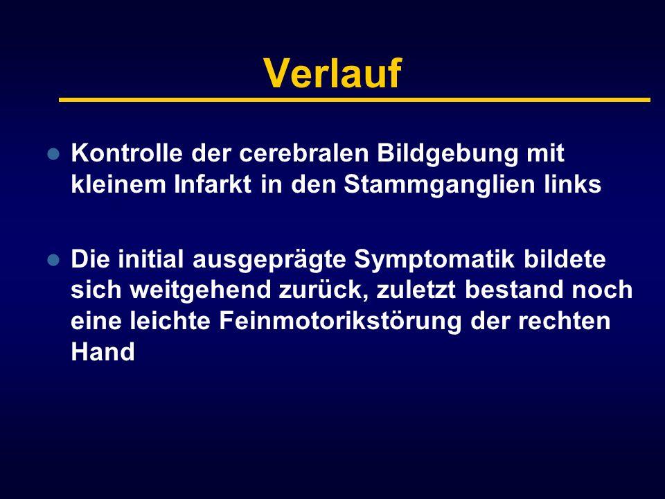 Verlauf Kontrolle der cerebralen Bildgebung mit kleinem Infarkt in den Stammganglien links Die initial ausgeprägte Symptomatik bildete sich weitgehend