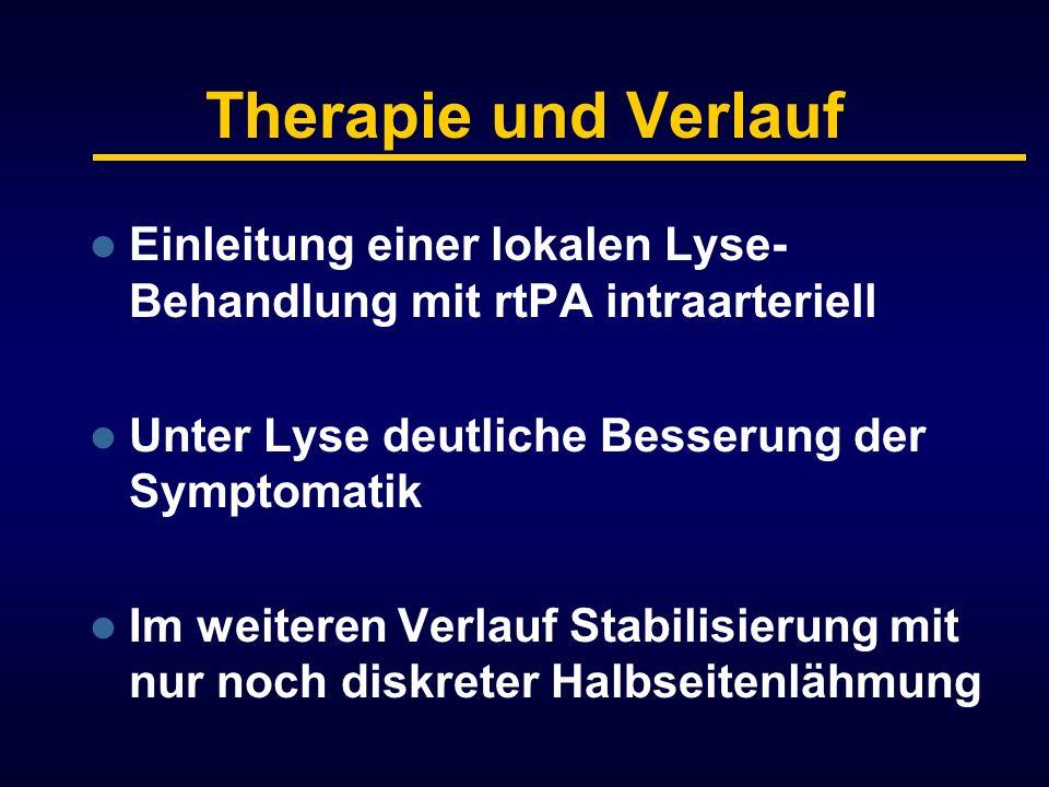 Therapie und Verlauf Einleitung einer lokalen Lyse- Behandlung mit rtPA intraarteriell Unter Lyse deutliche Besserung der Symptomatik Im weiteren Verl