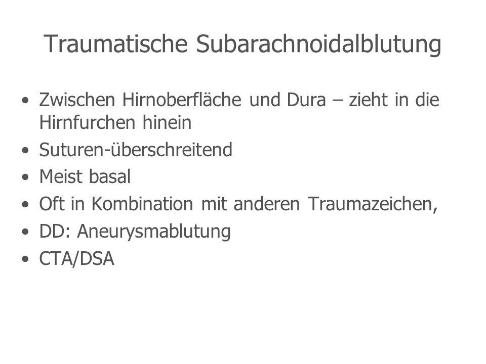 Traumatische Subarachnoidalblutung Zwischen Hirnoberfläche und Dura – zieht in die Hirnfurchen hinein Suturen-überschreitend Meist basal Oft in Kombination mit anderen Traumazeichen, DD: Aneurysmablutung CTA/DSA