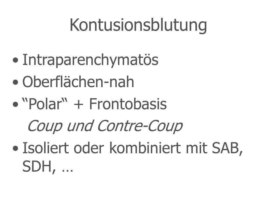 Kontusionsblutung Intraparenchymatös Oberflächen-nah Polar + Frontobasis Coup und Contre-Coup Isoliert oder kombiniert mit SAB, SDH, …
