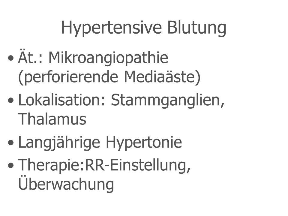Hypertensive Blutung Ät.: Mikroangiopathie (perforierende Mediaäste) Lokalisation: Stammganglien, Thalamus Langjährige Hypertonie Therapie:RR-Einstellung, Überwachung