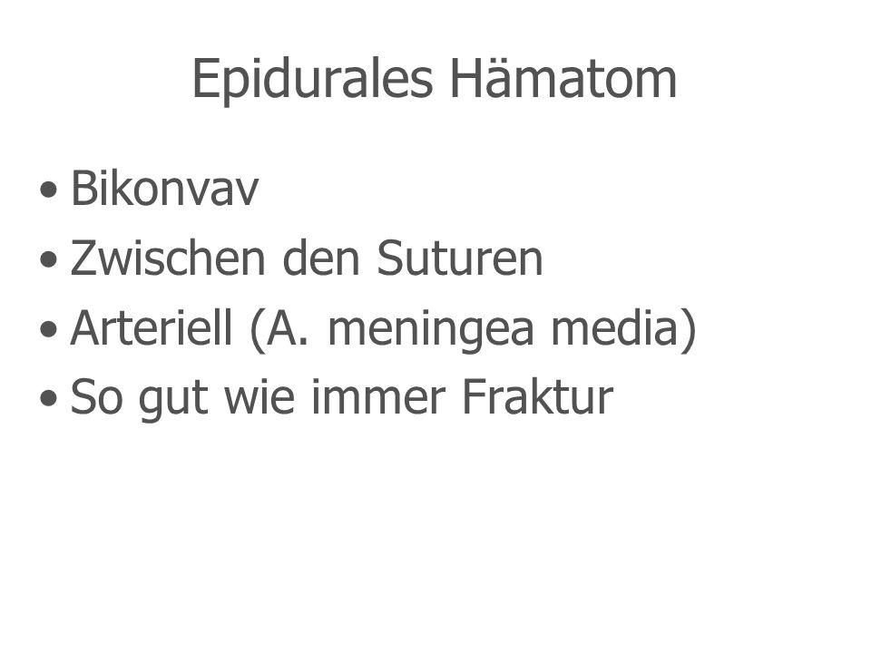 Epidurales Hämatom Bikonvav Zwischen den Suturen Arteriell (A.
