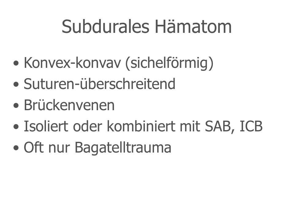 Subdurales Hämatom Konvex-konvav (sichelförmig) Suturen-überschreitend Brückenvenen Isoliert oder kombiniert mit SAB, ICB Oft nur Bagatelltrauma
