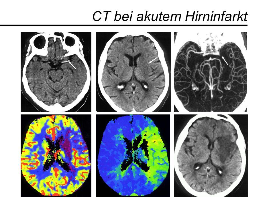 CT bei akutem Hirninfarkt CBF TTP
