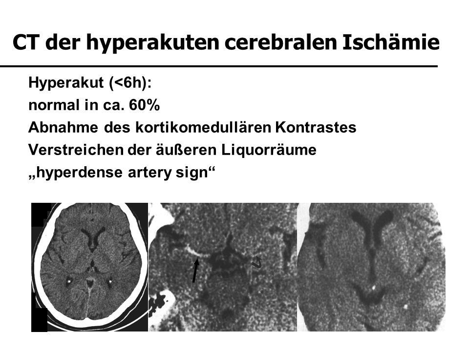 Hyperakut (<6h): normal in ca. 60% Abnahme des kortikomedullären Kontrastes Verstreichen der äußeren Liquorräume hyperdense artery sign CT der hyperak