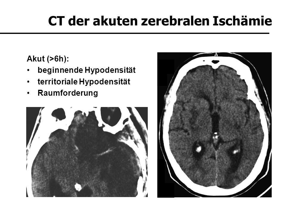 Subakut (>3 Tage): demarkierte Hypodensität und Blut/Hirn Schrankenstörung evtl.
