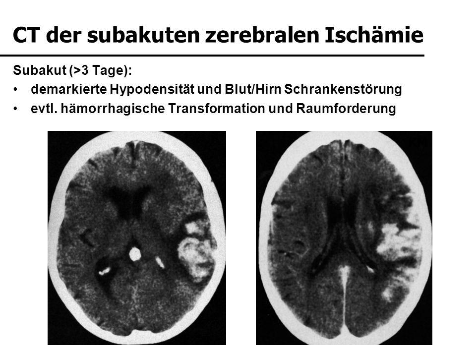 Subakut (>3 Tage): demarkierte Hypodensität und Blut/Hirn Schrankenstörung evtl. hämorrhagische Transformation und Raumforderung KM CT der subakuten z