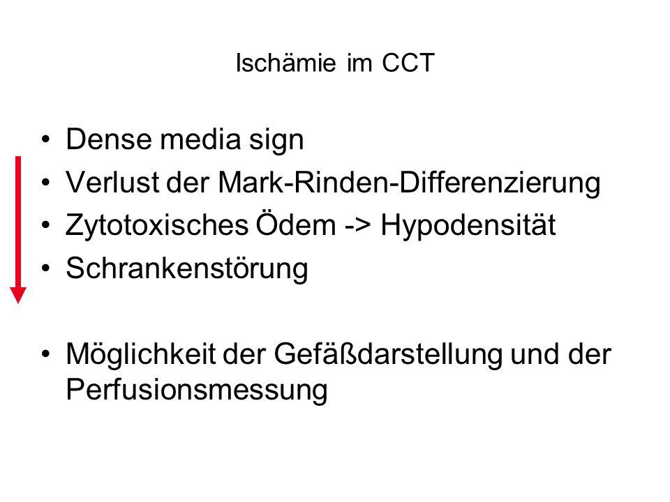 Ischämie im CCT Dense media sign Verlust der Mark-Rinden-Differenzierung Zytotoxisches Ödem -> Hypodensität Schrankenstörung Möglichkeit der Gefäßdars