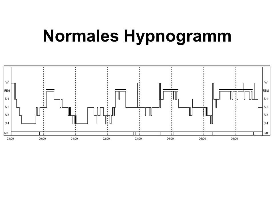 Normales Hypnogramm
