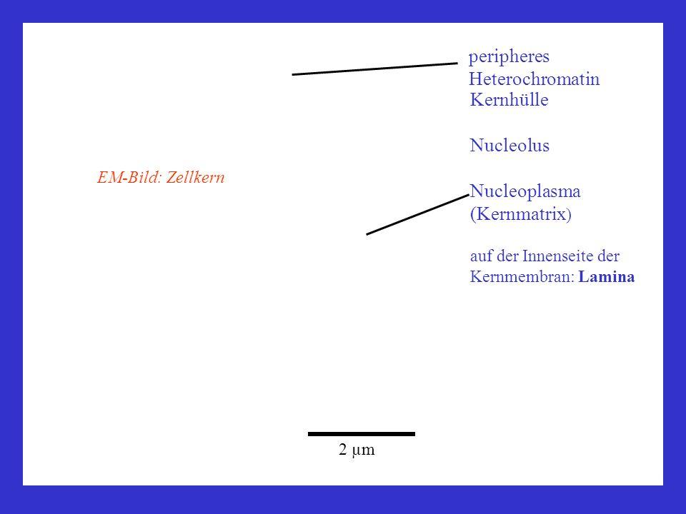 peripheres Heterochromatin Kernhülle Nucleolus Nucleoplasma (Kernmatrix ) auf der Innenseite der Kernmembran: Lamina 2 µm EM-Bild: Zellkern