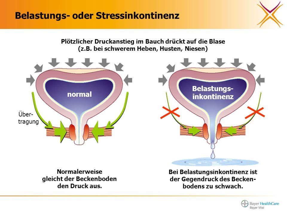 Belastungs- oder Stressinkontinenz Plötzlicher Druckanstieg im Bauch drückt auf die Blase (z.B. bei schwerem Heben, Husten, Niesen) Über- tragung Norm