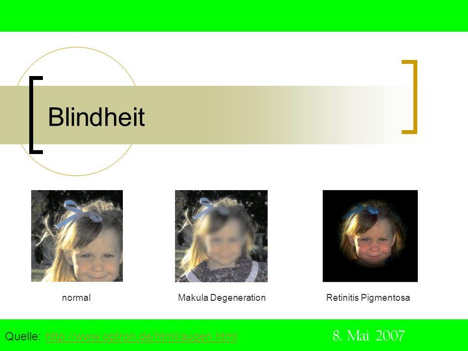 Blindheit Quelle: http://www.optron.de/html/augen.html 8. Mai 2007http://www.optron.de/html/augen.html normal Makula Degeneration Retinitis Pigmentosa