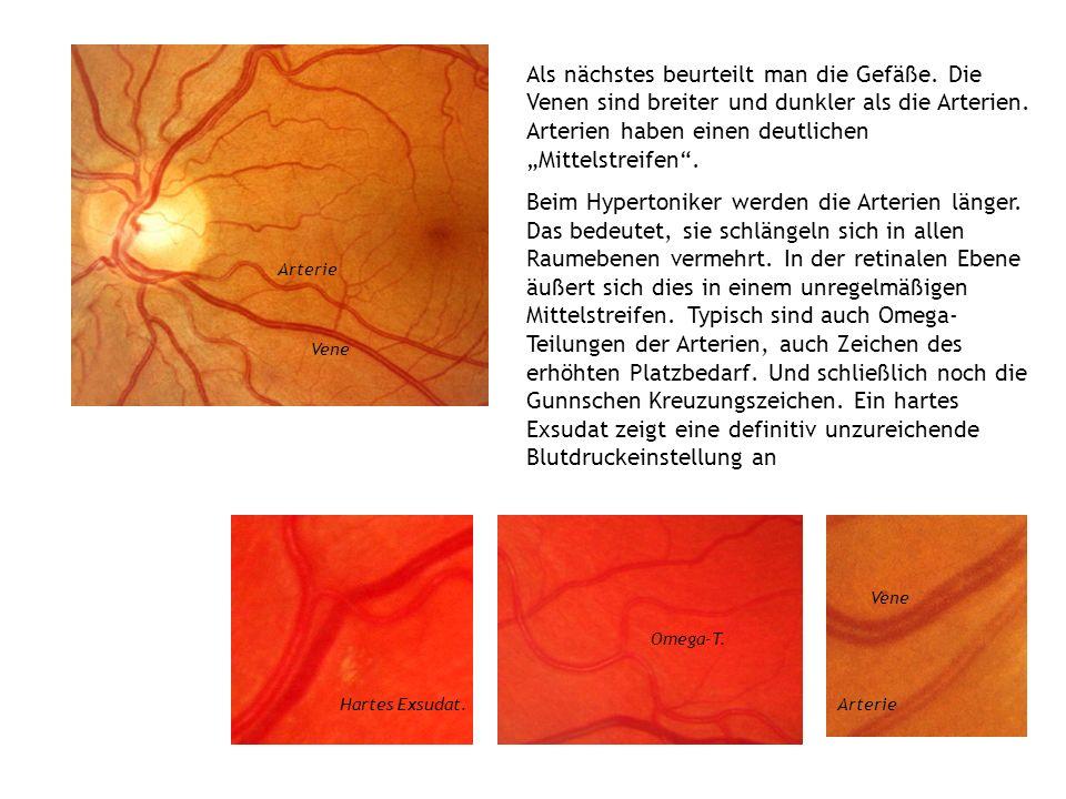 Als nächstes beurteilt man die Gefäße. Die Venen sind breiter und dunkler als die Arterien. Arterien haben einen deutlichen Mittelstreifen. Beim Hyper