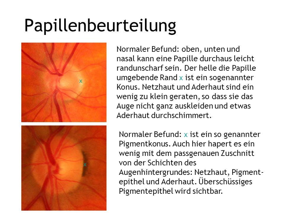 Papillenbeurteilung Normaler Befund: oben, unten und nasal kann eine Papille durchaus leicht randunscharf sein. Der helle die Papille umgebende Rand x