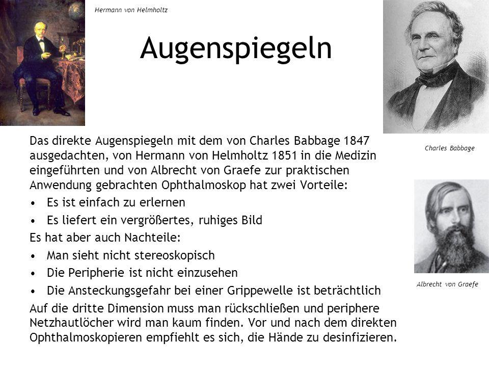 Augenspiegeln Das direkte Augenspiegeln mit dem von Charles Babbage 1847 ausgedachten, von Hermann von Helmholtz 1851 in die Medizin eingeführten und