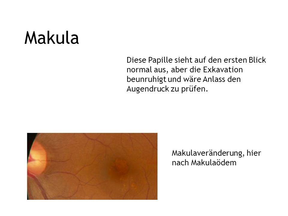 Makula Diese Papille sieht auf den ersten Blick normal aus, aber die Exkavation beunruhigt und wäre Anlass den Augendruck zu prüfen. Makulaveränderung