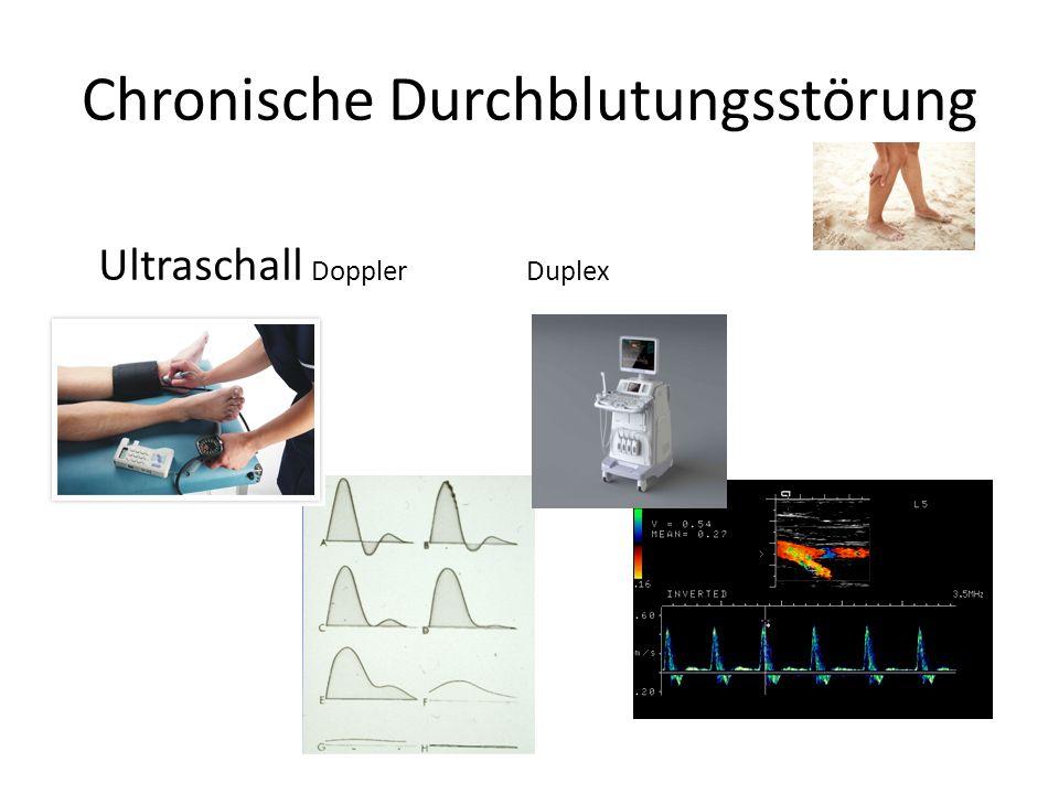Chronische Durchblutungsstörung Ultraschall Doppler Duplex