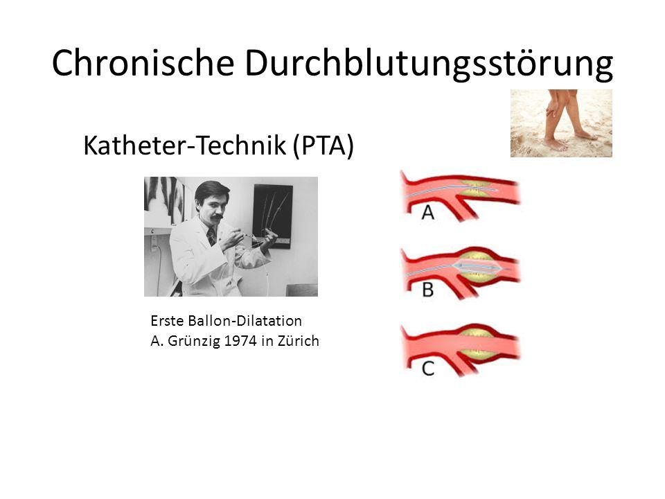 Chronische Durchblutungsstörung Katheter-Technik (PTA) Erste Ballon-Dilatation A. Grünzig 1974 in Zürich