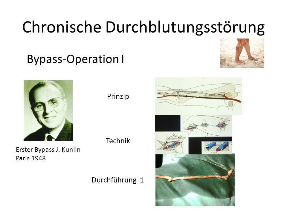 Chronische Durchblutungsstörung Bypass-Operation I Prinzip Technik Durchführung 1 Erster Bypass J. Kunlin Paris 1948