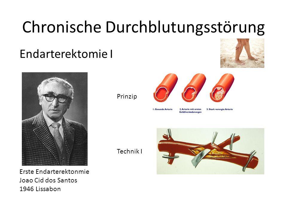 Erste Endarterektonmie Joao Cid dos Santos 1946 Lissabon Chronische Durchblutungsstörung Prinzip Technik I Endarterektomie I