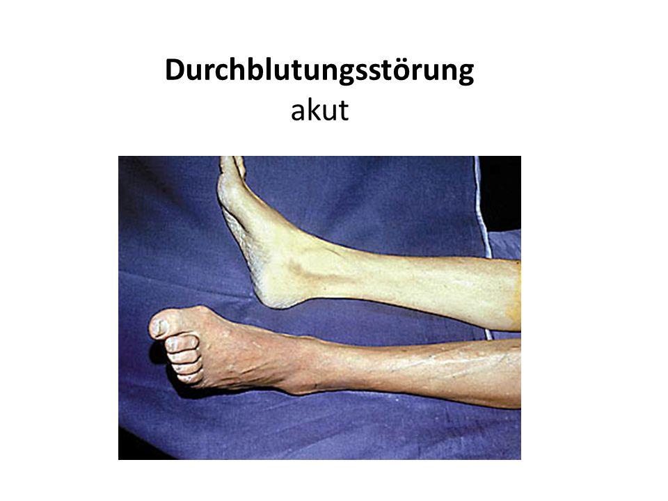 Chronische Durchblutungsstörung Klinische Untersuchung notwendig aber ungenügend Anamnese (was erzählt der Patient) Inspektion (was sieht der Arzt) Palpation (was tastet der Arzt) Auskultation (was hört der Arzt am Bein)
