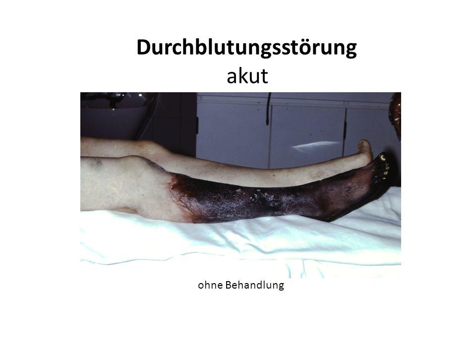 Durchblutungsstörung (chronisch) Gewebstod Ruheschmerz Schaufensterkrankheit