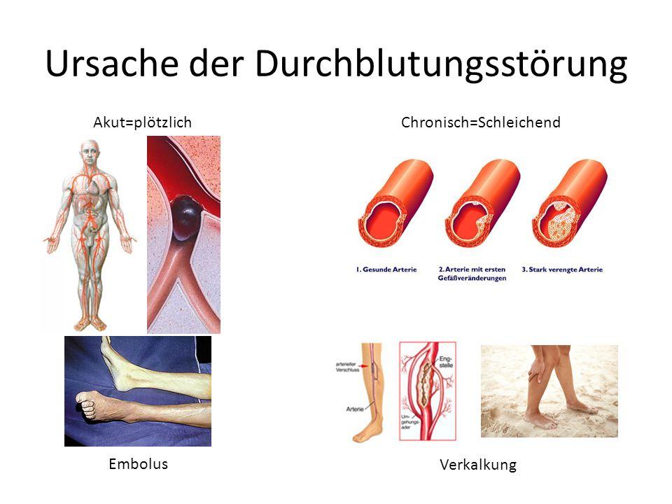 Akute Durchblutungsstörung Klinische Untersuchung genügt (mit den Sinnen) Anamnese (was erzählt der Patient) Inspektion (was sieht der Arzt) Palpation (was tastet der Arzt) Auskultation (was hört der Arzt am Bein)