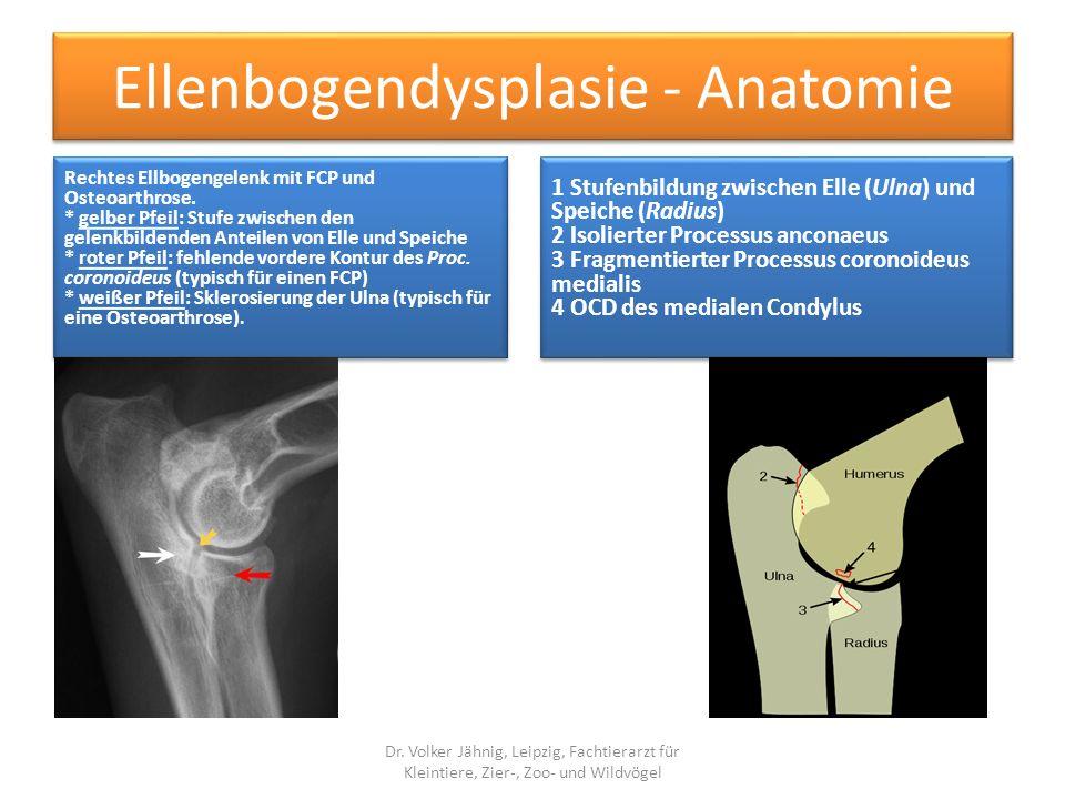 Ellenbogendysplasie - Anatomie Rechtes Ellbogengelenk mit FCP und Osteoarthrose. * gelber Pfeil: Stufe zwischen den gelenkbildenden Anteilen von Elle