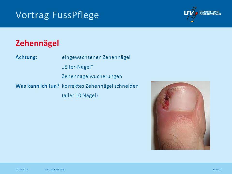 Seite 10 30.04.2013 Vortrag FussPflege Zehennägel Achtung: eingewachsenen Zehennägel Eiter-Nägel Zehennagelwucherungen Was kann ich tun? korrektes Zeh