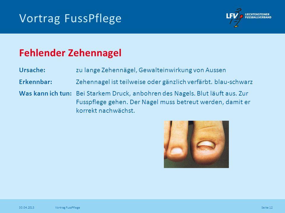 Seite 12 30.04.2013 Vortrag FussPflege Fehlender Zehennagel Ursache: zu lange Zehennägel, Gewalteinwirkung von Aussen Erkennbar: Zehennagel ist teilwe