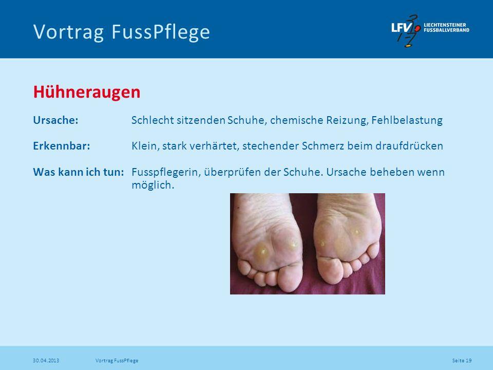 Seite 19 30.04.2013 Vortrag FussPflege Hühneraugen Ursache: Schlecht sitzenden Schuhe, chemische Reizung, Fehlbelastung Erkennbar: Klein, stark verhär