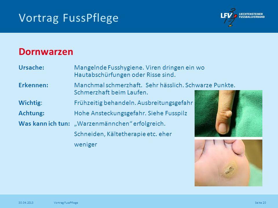 Seite 20 30.04.2013 Vortrag FussPflege Dornwarzen Ursache: Mangelnde Fusshygiene. Viren dringen ein wo Hautabschürfungen oder Risse sind. Erkennen: Ma