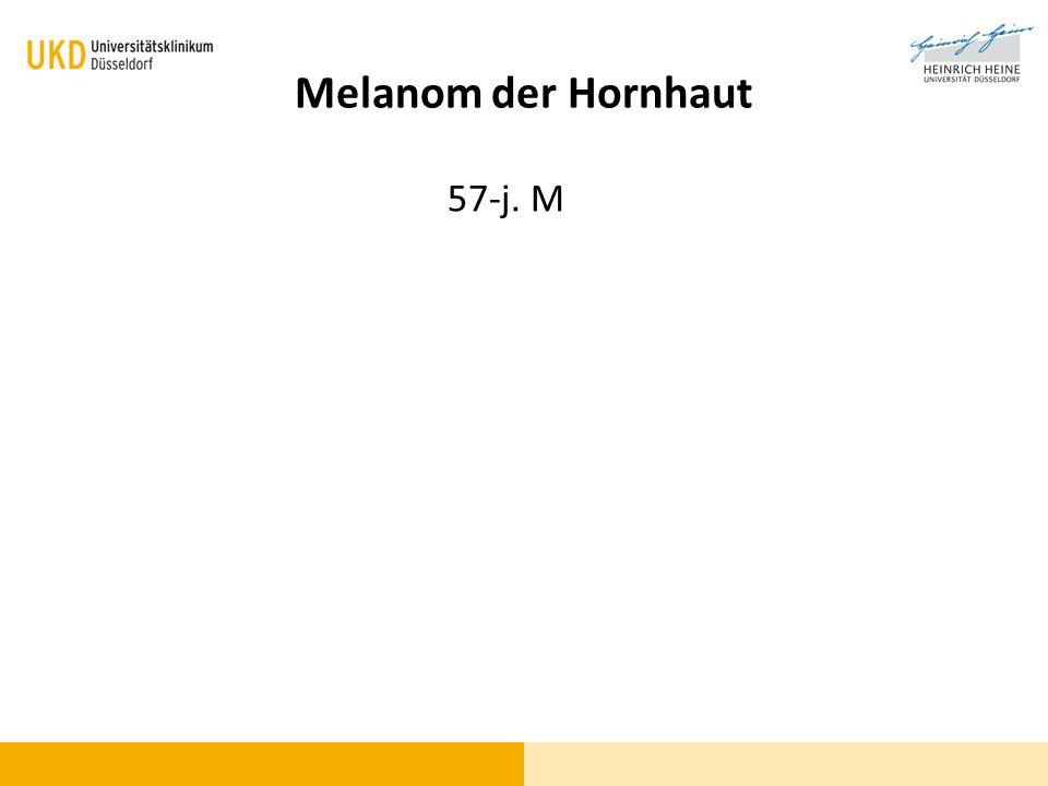 57-j. M Melanom der Hornhaut