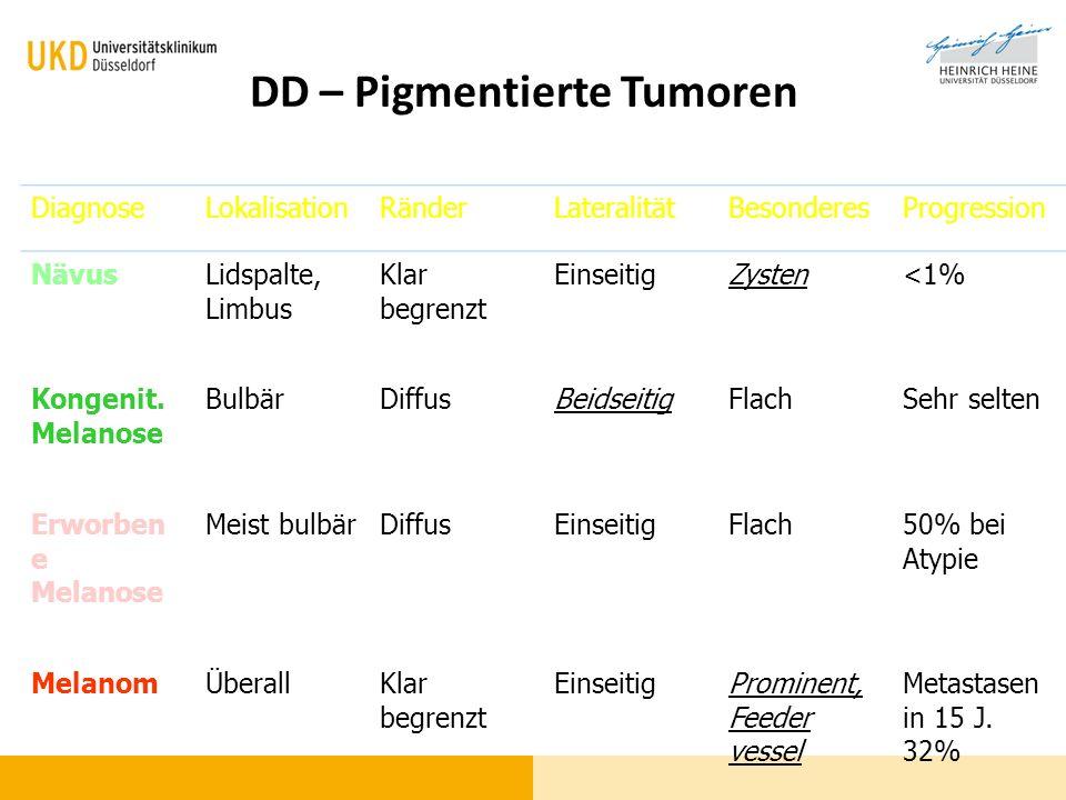 DD – Pigmentierte Tumoren DiagnoseLokalisationRänderLateralitätBesonderesProgression NävusLidspalte, Limbus Klar begrenzt EinseitigZysten<1% Kongenit.