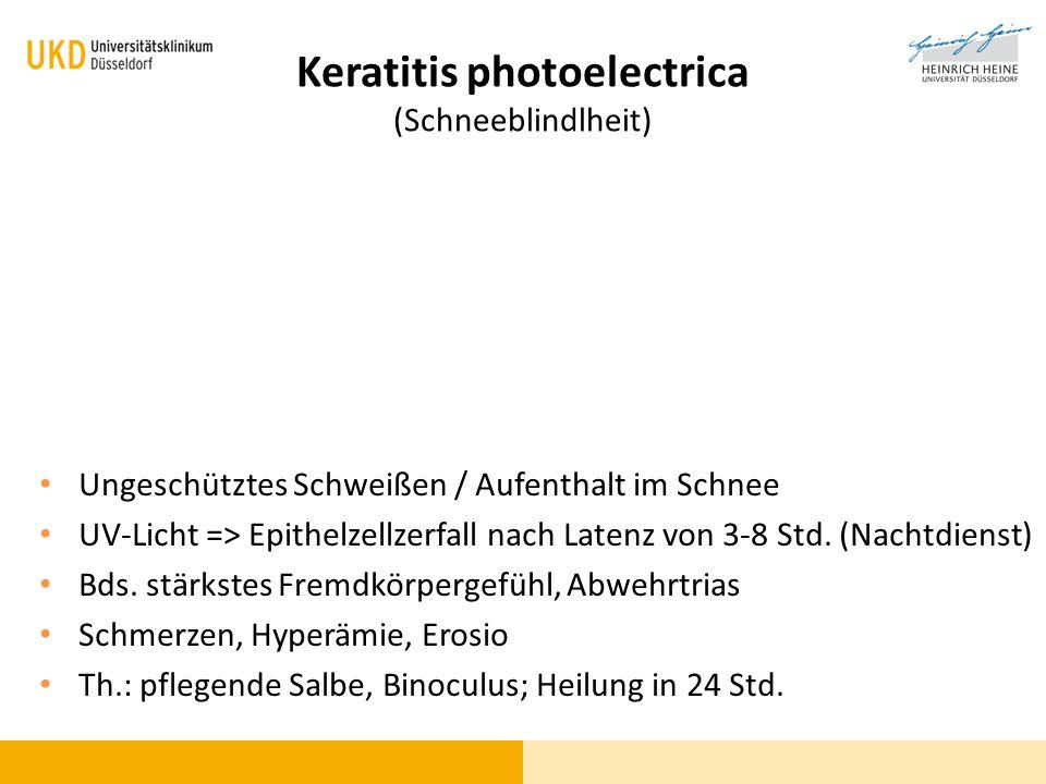 Keratitis photoelectrica (Schneeblindlheit) Ungeschütztes Schweißen / Aufenthalt im Schnee UV-Licht => Epithelzellzerfall nach Latenz von 3-8 Std. (Na