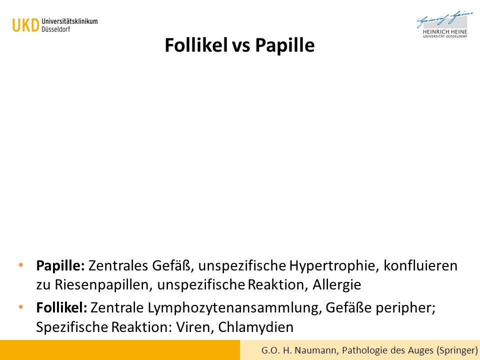 Follikel vs Papille G.O. H. Naumann, Pathologie des Auges (Springer) Papille: Zentrales Gefäß, unspezifische Hypertrophie, konfluieren zu Riesenpapill