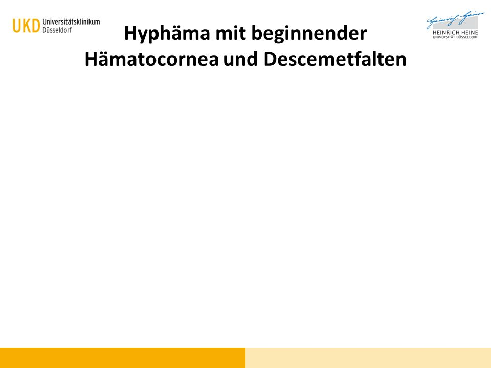 Hyphäma mit beginnender Hämatocornea und Descemetfalten