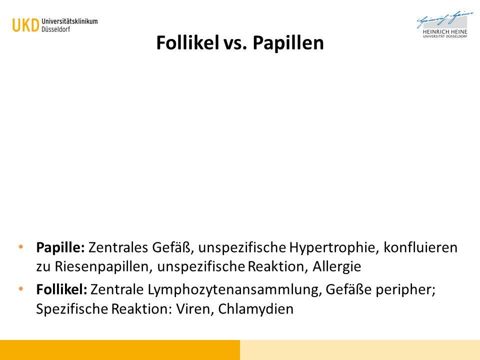 Follikel vs. Papillen Papille: Zentrales Gefäß, unspezifische Hypertrophie, konfluieren zu Riesenpapillen, unspezifische Reaktion, Allergie Follikel: