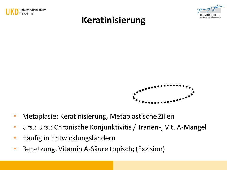 Metaplasie: Keratinisierung, Metaplastische Zilien Urs.: Urs.: Chronische Konjunktivitis / Tränen-, Vit. A-Mangel Häufig in Entwicklungsländern Benetz