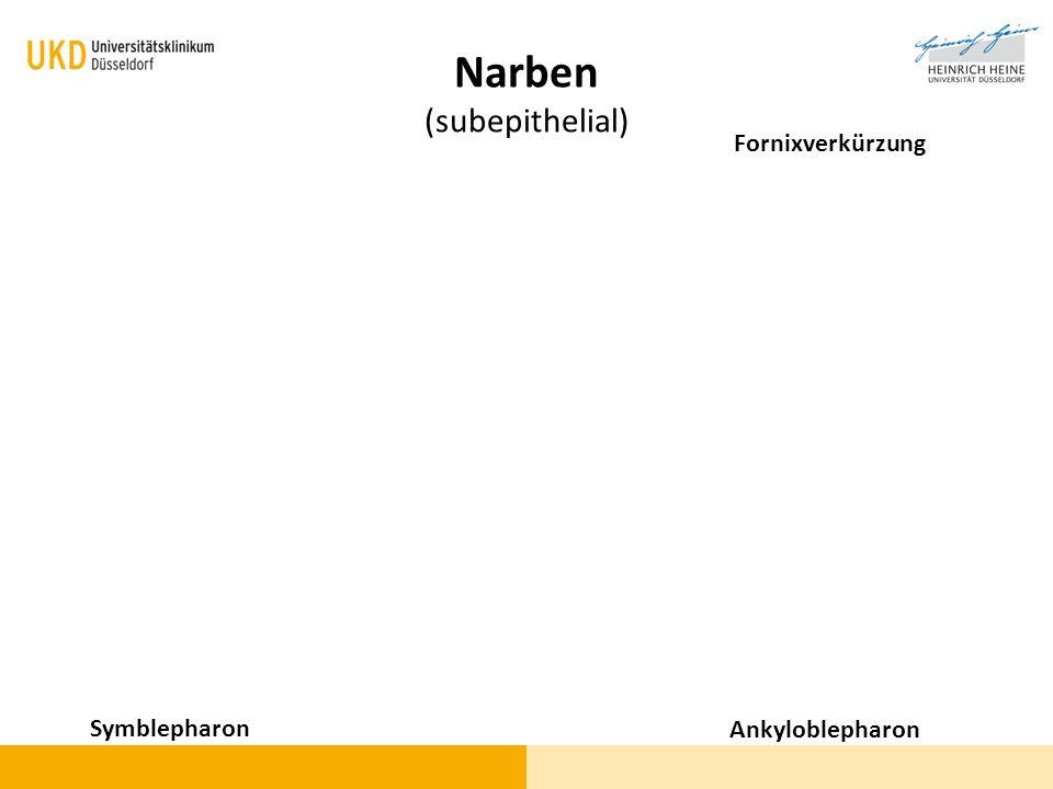 Narben (subepithelial) Symblepharon Ankyloblepharon Fornixverkürzung