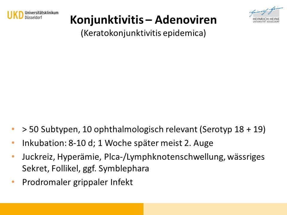 Konjunktivitis – Adenoviren (Keratokonjunktivitis epidemica) > 50 Subtypen, 10 ophthalmologisch relevant (Serotyp 18 + 19) Inkubation: 8-10 d; 1 Woche