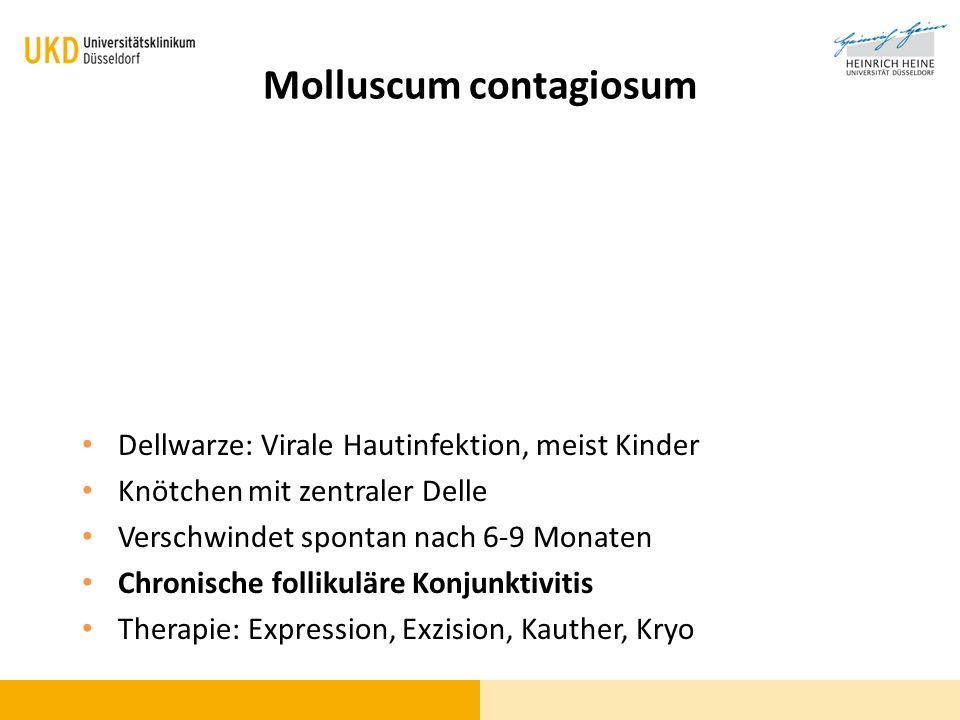 Molluscum contagiosum Dellwarze: Virale Hautinfektion, meist Kinder Knötchen mit zentraler Delle Verschwindet spontan nach 6-9 Monaten Chronische foll