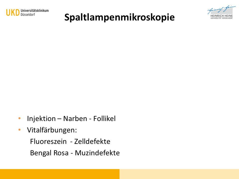 Abwehr-Trias (unspezifisch!) Epiphora Photophobie Blepharospasmus