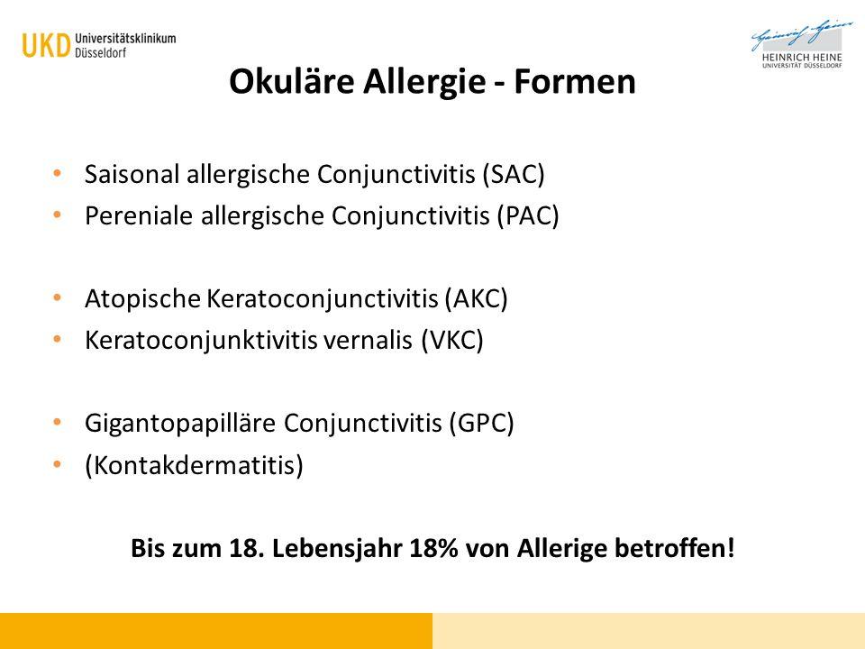 Okuläre Allergie - Formen Saisonal allergische Conjunctivitis (SAC) Pereniale allergische Conjunctivitis (PAC) Atopische Keratoconjunctivitis (AKC) Ke