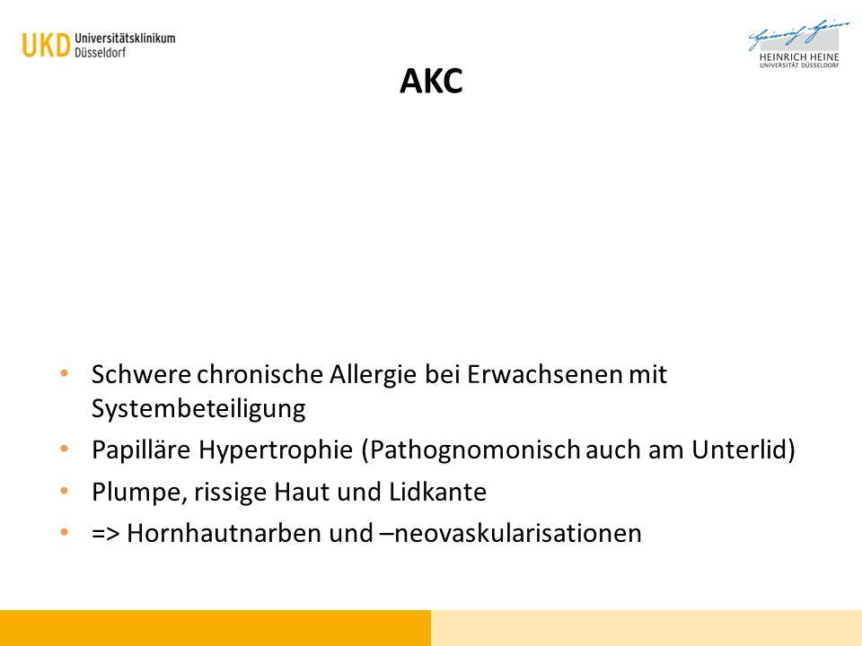 AKC Schwere chronische Allergie bei Erwachsenen mit Systembeteiligung Papilläre Hypertrophie (Pathognomonisch auch am Unterlid) Plumpe, rissige Haut u