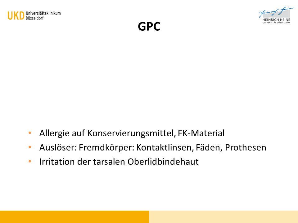 GPC Allergie auf Konservierungsmittel, FK-Material Auslöser: Fremdkörper: Kontaktlinsen, Fäden, Prothesen Irritation der tarsalen Oberlidbindehaut