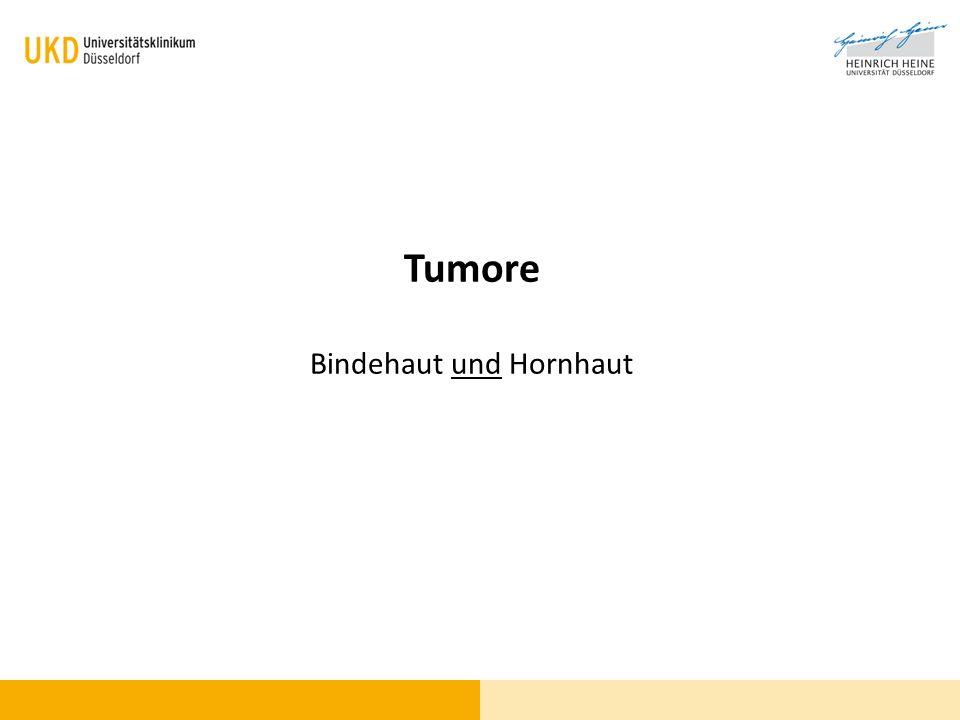 Tumore Bindehaut und Hornhaut