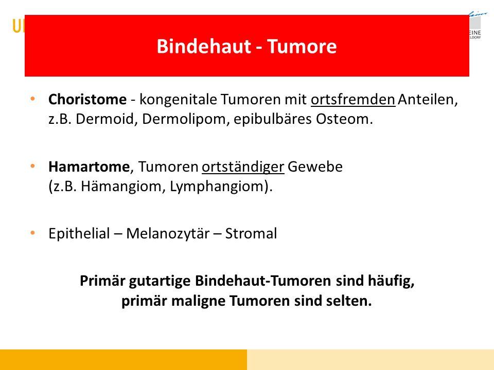 Bindehaut - Tumore Choristome - kongenitale Tumoren mit ortsfremden Anteilen, z.B. Dermoid, Dermolipom, epibulbäres Osteom. Hamartome, Tumoren ortstän