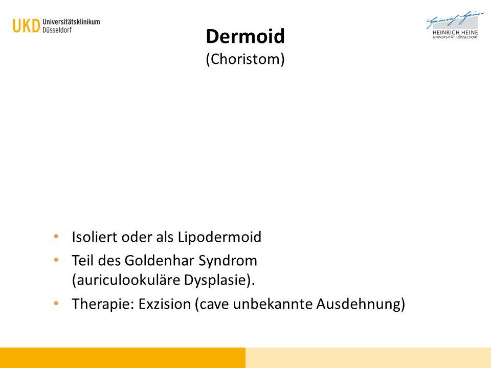 Dermoid (Choristom) Isoliert oder als Lipodermoid Teil des Goldenhar Syndrom (auriculookuläre Dysplasie). Therapie: Exzision (cave unbekannte Ausdehnu